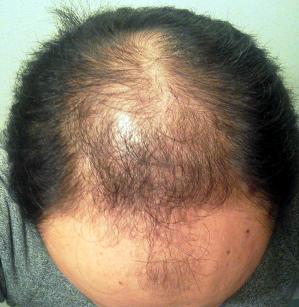 育毛の達人 検証