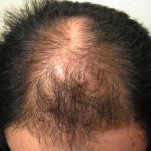 育毛の達人 実践記録
