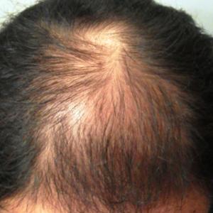 育毛の達人式 実践