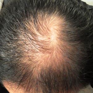育毛の達人 効果