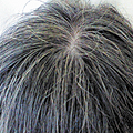 白髪遺伝子